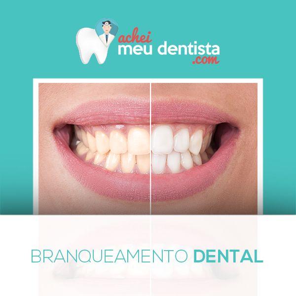 Saiba como funciona o clareamento dental, e seus tipos: https://www.facebook.com/notes/achei-meu-dentistacom/branqueamento-dental/1760487500859685