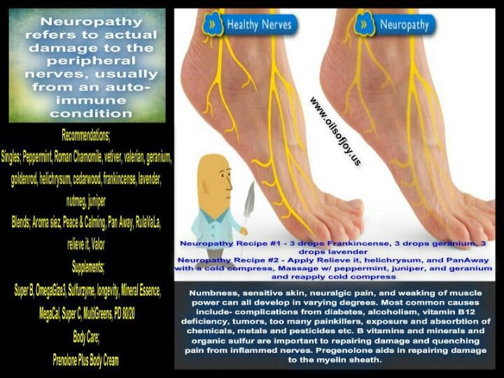 163 Best Images About Neuropathy On Pinterest Diabetic