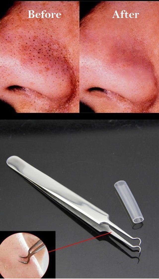 Blackhead, Acne and Pimple Extractor