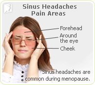 Sinus headaches pain areas: headaches can occur in the forehead and around the eyes and cheeks.