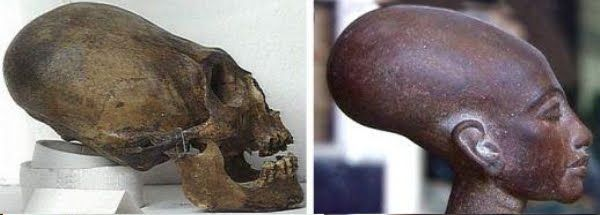 The Paracas skulls: aliens, an unknown hominid species or cranial ...