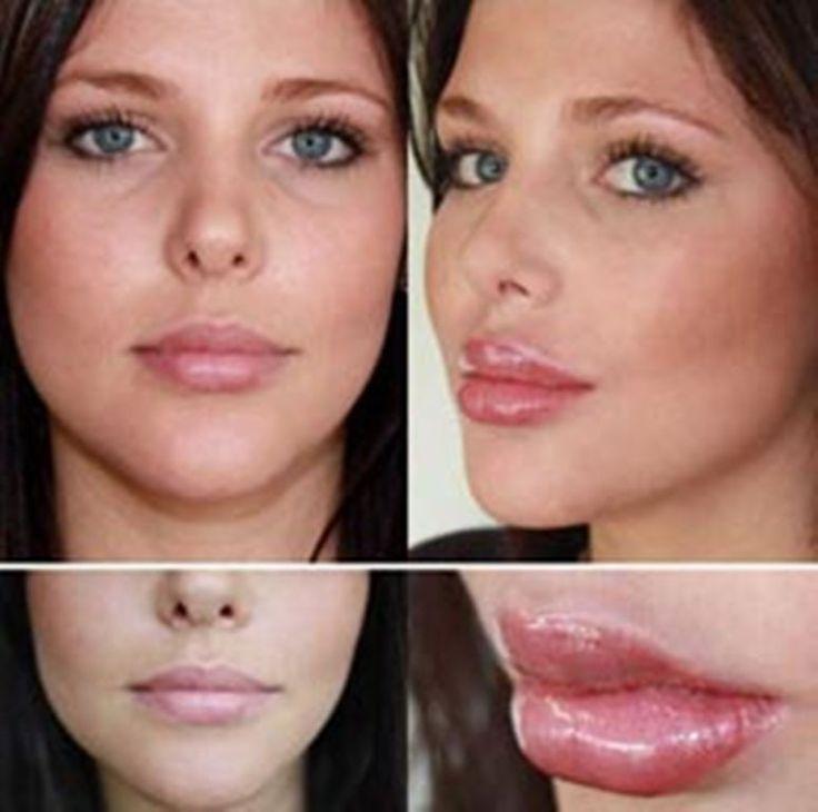 25 best Lip Augmentation images on Pinterest
