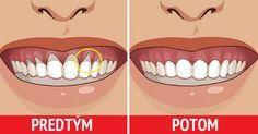 Paradentóza je problém, ktorý je tichým postrachom nás všetkých, aj keď si to mnohí neuvedomujeme. Z dôvodu, že je táto choroba neprenosná a nesprevádza ju ostrá a prudká bolesť, nechávame ju z nedbanlivosti zájsť príliš ďaleko. Namiesto prevencie potom musíme riešiť citlivé ďasná, kazy a uvoľnenie zubov až po ich úplnú stratu. Ak ste si všimli …
