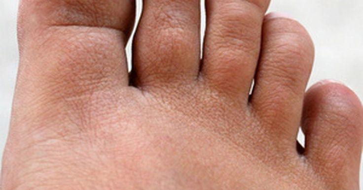 Cómo enderezar un dedo del pie en martillo. Un dedo del pie en martillo tiene lugar cuando su articulación media se dobla y crea la apariencia de una garra. Si bien los accidentes y las deformidades genéticas pueden ser el origen del dedo en martillo, la causa más frecuente es el uso de calzado incómodo y apretado. Los zapatos con puntera estrecha o de taco alto suelen causar esta ...