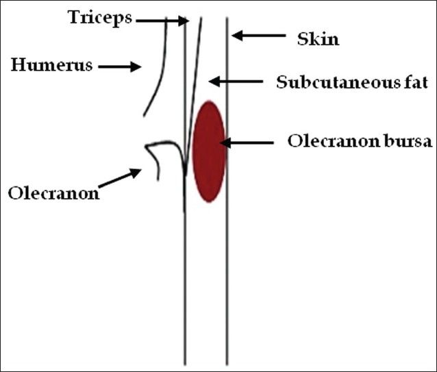 "An external file that holds a picture, illustration, etc. Object name is JCIS-1-22-g028.jpg  The olecranon bursa is a subcutaneous bursa that provides almost frictionless motion between the skin, the subcutaneous tissues and the olecranon [Figure 27]. Because of its superficial location, it is a common site for injury, inflammation and infection. Repeated work-related trauma results in bursitis as seen in ""student's elbow"" or ""miner's elbow."