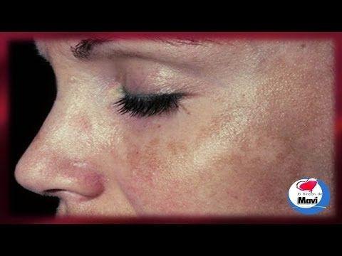 Como eliminar las manchas solares o marrones de la piel - Cuidados de la piel - YouTube