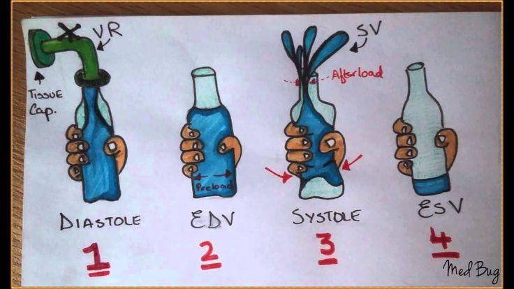 Stroke Vol, Preload, Afterload, Venous Return, End Diastolic Vol, End Systolic Vol. Made easy