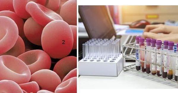 Anemia hemolítica, en qué consiste: ¡descúbrelo aquí!