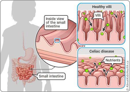 What is celiac disease, simply  Clear Focus Nutrition