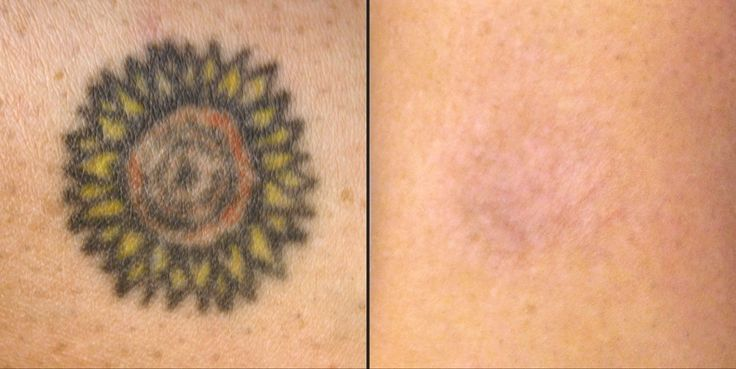 Tattoo Removal Scars Before And After Picosure laser tattoo removal