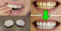 Επιβεβαιωμένο! Λευκάνετε τα κίτρινα δόντια σας σε λιγότερο από 2 λεπτά!