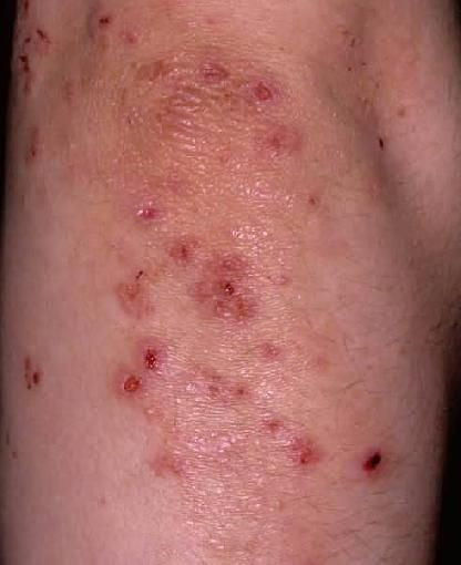 Dermatitis Herpetiformis, The 'Gluten Rash'