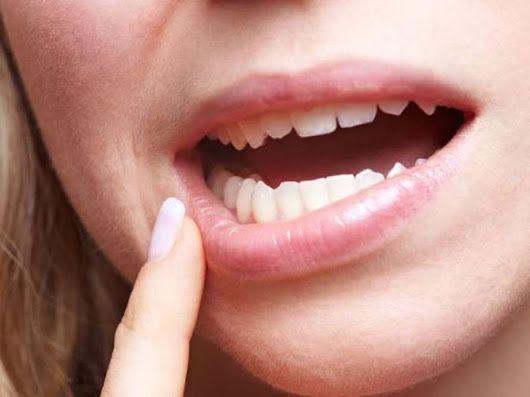 Brak witamin - objawy, które rozpoznasz w jamie ustnej