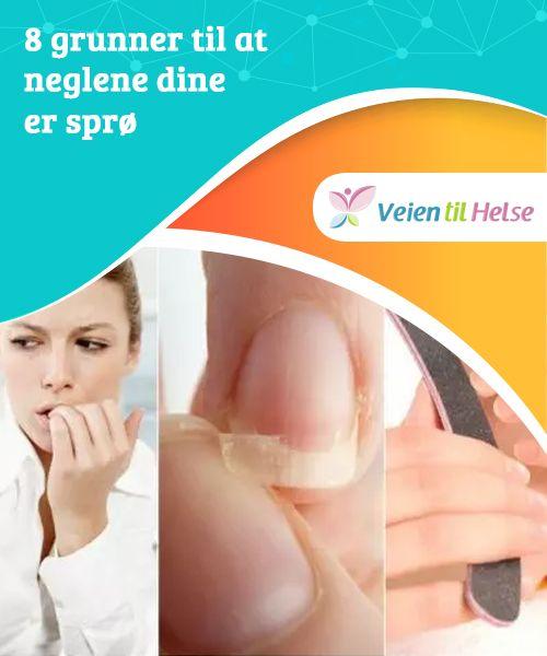 8 grunner til at neglene dine er sprø  Det er en god idé å finne ut hva som skader neglene dine og får dem til å bli sprø før du begynner å bruke penger på dyre behandlinger.