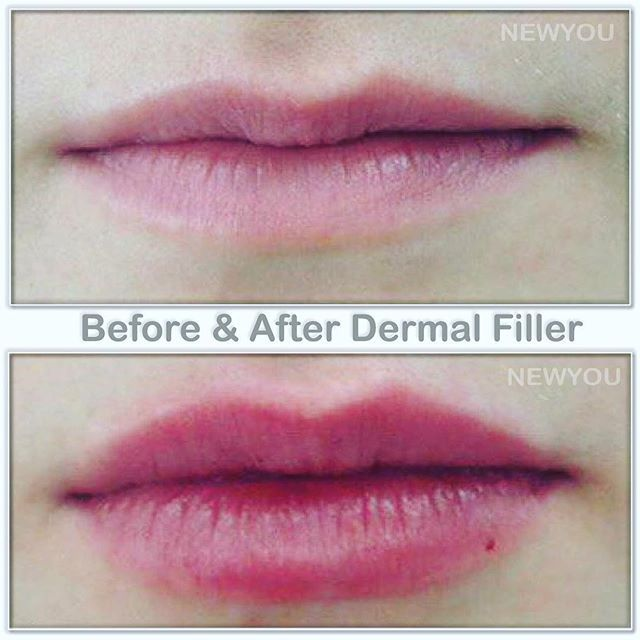 A lovely before and after for our beautiful client :lips: Our nurse @lovefromkat used 1 syringe of Revanesse to give her naturally full lips that will last about a year! . Do you have questions about lip augmentation? Book your consultation today!