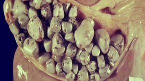 Expulsa las piedras en la vesícula ¡Ingiere este remedio natural!