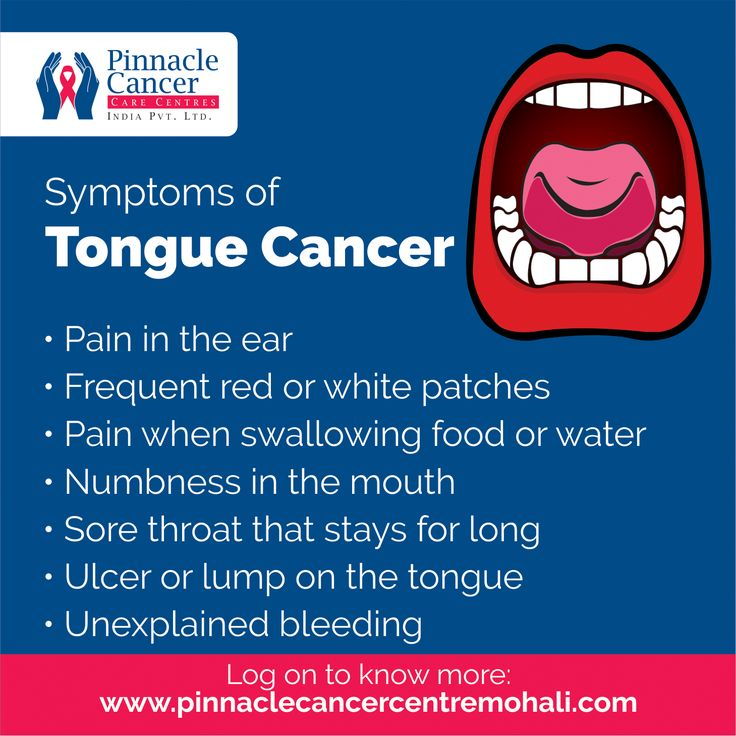 #Symptoms of #TongueCancer  >> #Pain in the #ear >> Frequent red or white #patches >> Pain when #swallowing #food or #water >> #Numbness in the #mouth >> Sore #throat that stays for long >> #Ulcer or lump on the #tongue >> Unexplained #bleeding  #symptoms #tongue #cancer