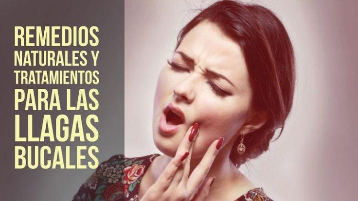 Las aftas o llagas en la boca salen por causas diversas como el estrés, la ingesta de alimentos ácidos o cítricos. ¿Cómo aliviar estas molestas llagas?