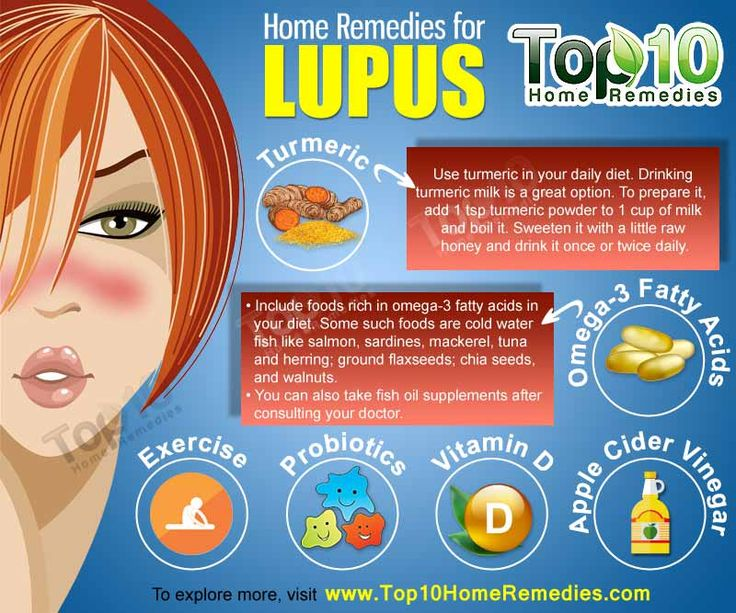 Top 10 Home Remedies for Lupus