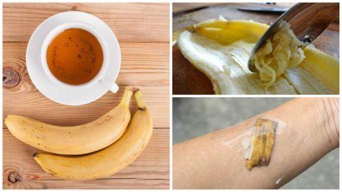 5 formas de utilizar las cáscaras de banana como remedio natural - Mejor con Salud