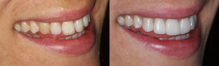 White Fillings Before and After Photos – Ten Dental #great #dental #insurance  #white fillings # White Fillings SASHA Sasha came to us feeling very self co