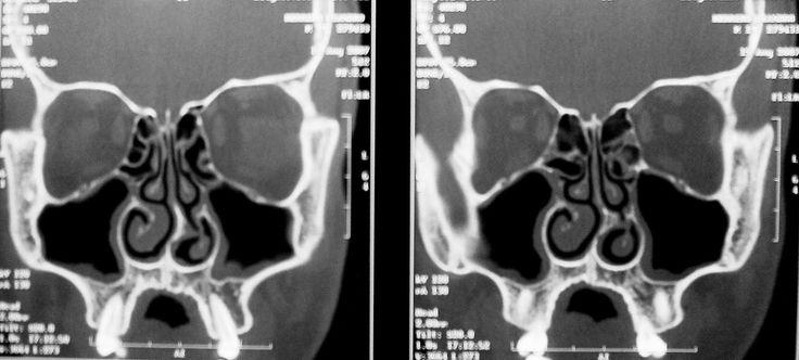Tomografía computada en secciones coronales para estudiar los senos paranasales.