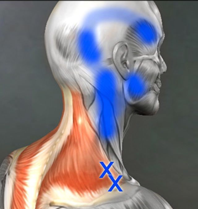 Human Anatomy - triggerpoints in the neck.