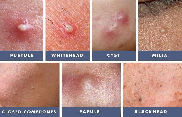 Treating Whiteheads Cysts And Blackheads Howtotreatcellulite