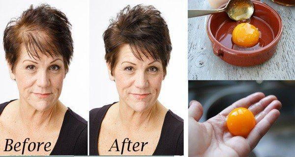 World Health Info: THE MAGIC HOMEMADE RECIPE FOR FASTEST HAIR GROWTH! 3 INGREDIENTS ONLY…
