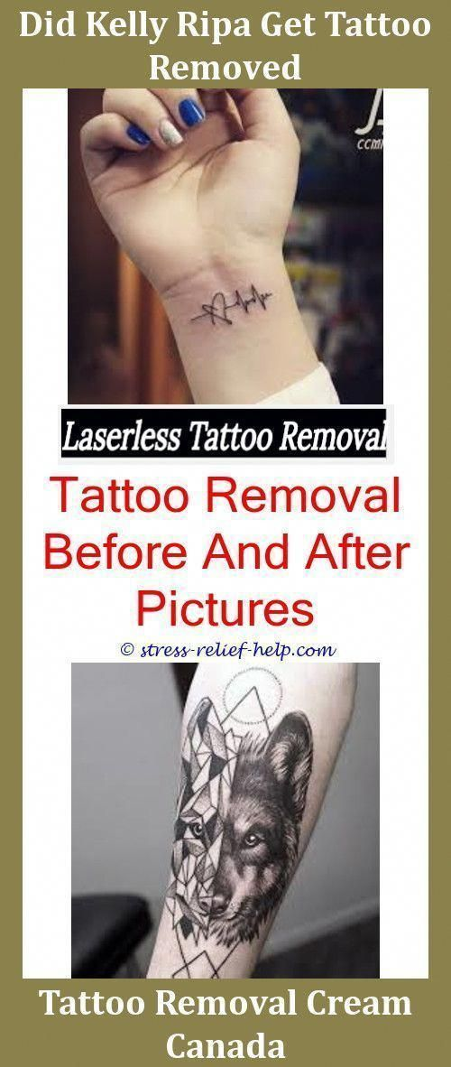 Permanent Tattoo Removal Cost How To Remove A Tattoo Yourself At ...