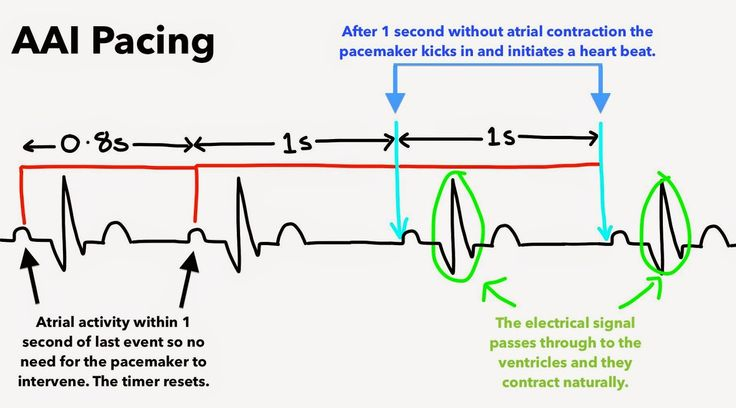 Aai Pacemaker Mode Sick Sinus Syndrome Med Ecg