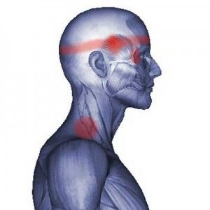 Splenius Cervicis Muscle: Headache, Eye Pain, Blurred Vision - Pain in the shoulder / neck juncture, going up the neck and into the back of the eye as well as blurred vision can be an indication of splenius cervicis muscle dysfunction.