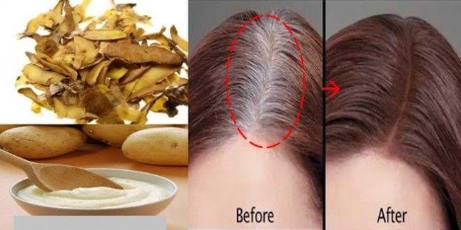Beyaz Saça  Patates Kabugu İle Son!