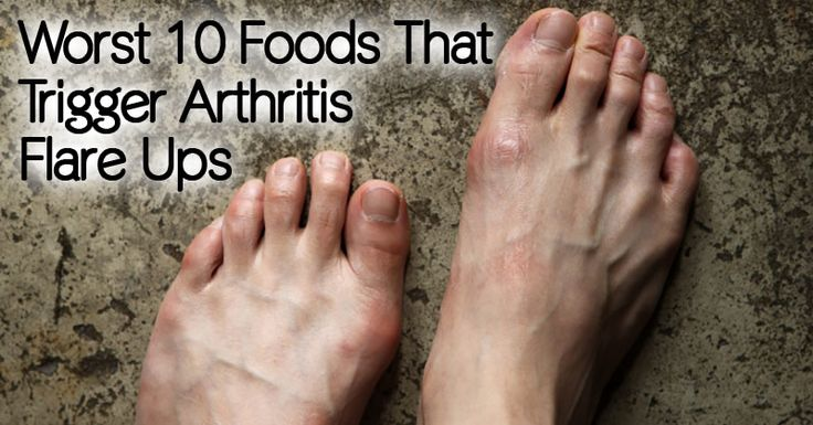 Arthritis is a condition of painful joint inflammation that makes the joints stiff and difficult to move. Since this condition affects the musculoskeletal system, it can cause severe disability in older people, and in some...