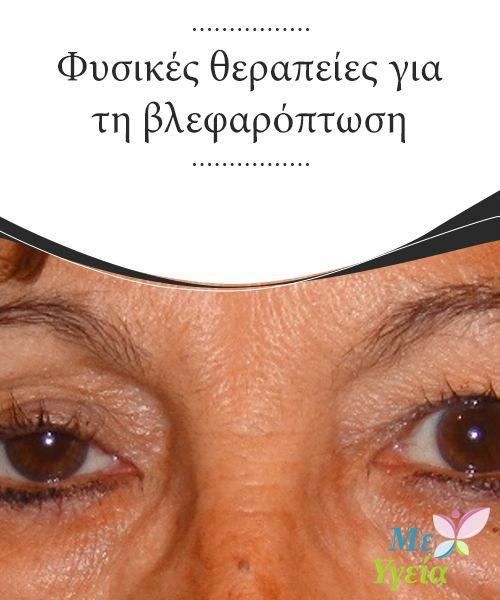 Φυσικές θεραπείες για τη βλεφαρόπτωση  Τα #χαλαρωμένα #βλέφαρα ή η #βλεφαρόπτωση είναι μια #κατάσταση που όχι μόνο κάνει τους ανθρώπους να δείχνουν μεγαλύτεροι σε #ηλικία από ότι πραγματικά είναι, αλλά μπορεί επίσης να εμποδίσει την όραση. #ΦΥΣΙΚΈΣ ΘΕΡΑΠΕΊΕΣ