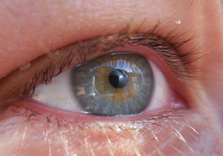 Tomi - right eye