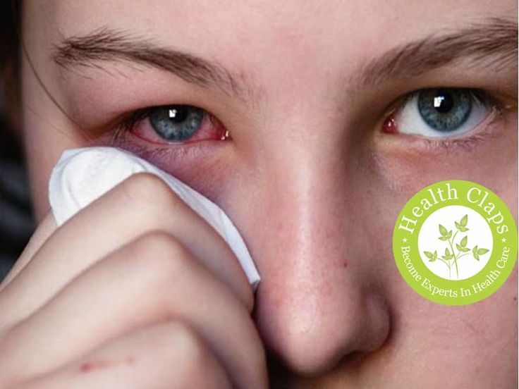 What is Pink Eye (Conjunctivitis)? And Symptoms of Pink Eye..Do you know what is pink eye? Pink eye (conjunctivitis) occurs due to some viral and bacterial infections. What are the symptoms of pink eye? Here is the total information.
