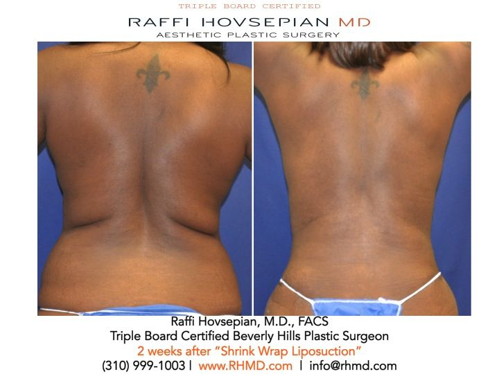 "Another Amazing Natural Looking Transformation by Dr. Raffi Hovsepian! A mother who underwent Shrink Wrap Liposuction only ""2 WEEKS"" since her procedure. Her results will only get better! The results are what we strive for! For more information visit www.RHMD.com / (310)-999-1003. #shrinkwrapliposuction #shrinkwraplipo #liposuction #bodytransformation #DrRaffiHovsepian #fit #plasticsurgery #RHMD #lipo"