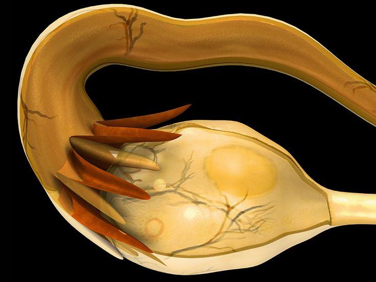 ACOG Updates Pregnancy Nausea/Vomiting Treatment Guidelines