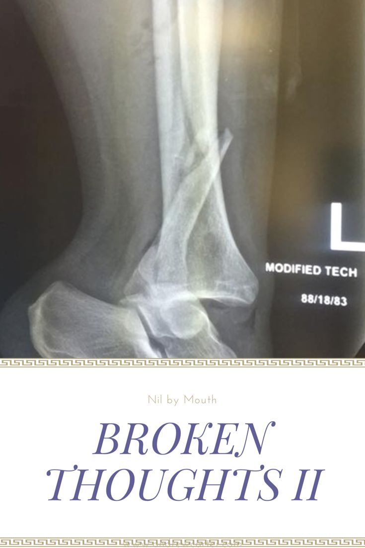 There's an extra bend in my ankle, but how bad is it? X-Ray dislocated ankle, broken leg, health