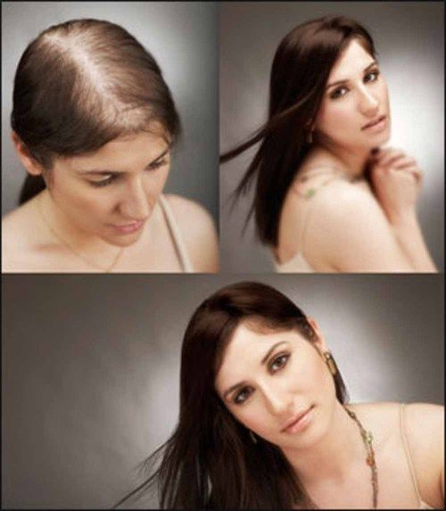 Eat away your hair loss problems! @ http://www.stylecraze.com/articles/eat-away-your-hair-loss-problems/