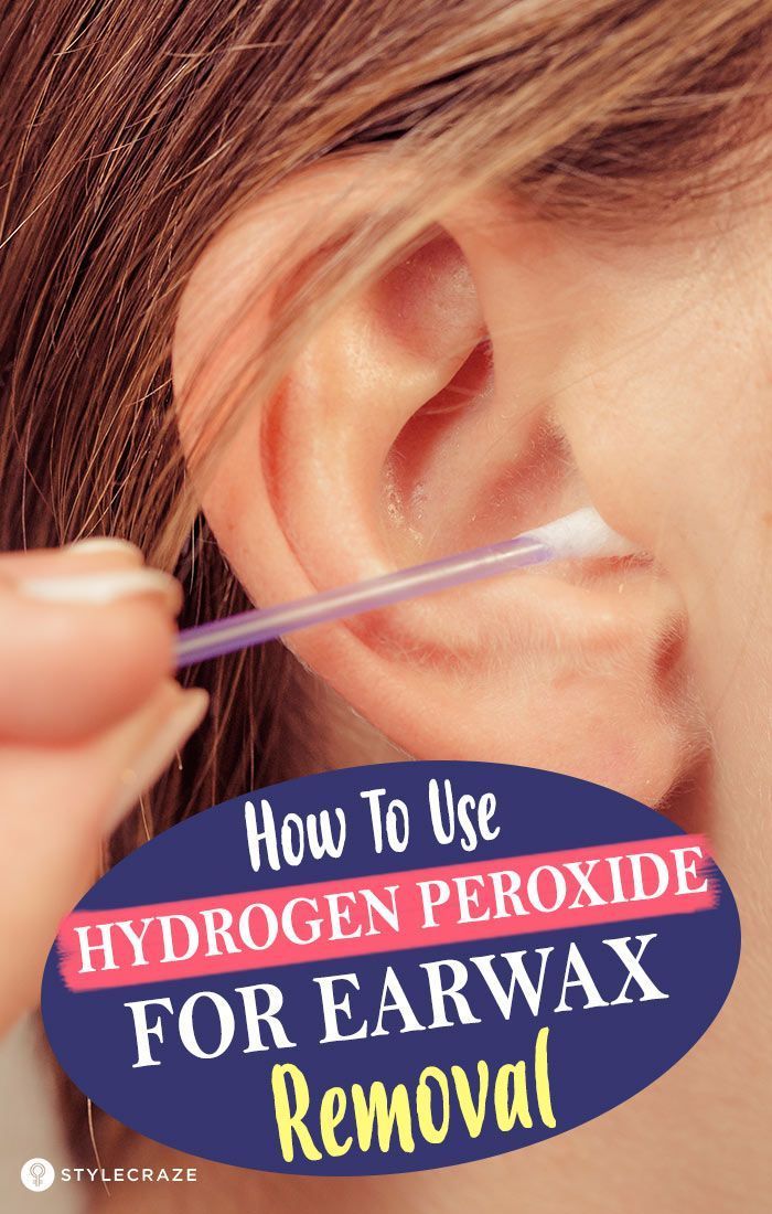 How To Use Hydrogen Peroxide For Earwax Removal Earwaxblockage