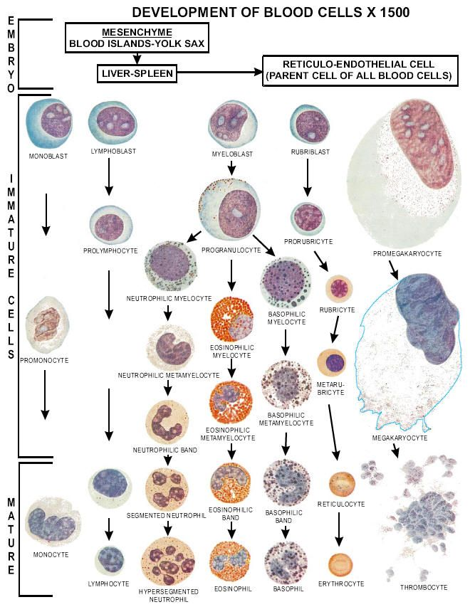 peripheral blood smears differentials - Google Search