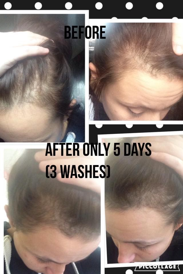 More great hair growth, from just 3 days using Nutriol shampoo ORDER direct http://bashfulbabesbeauty.nsproducts.com
