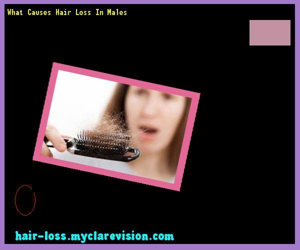 What can cause hair loss in young females?