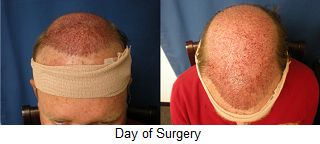 What to expect after a #HairTransplant surgery.