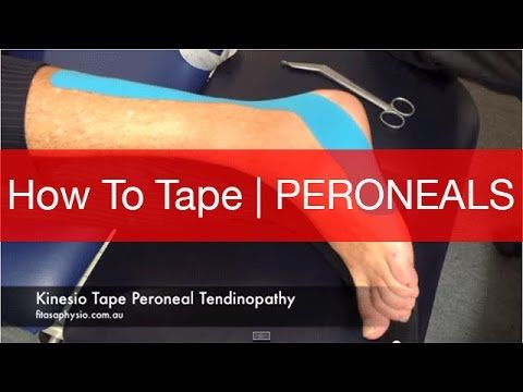 How to Kinesio Tape for Peroneal Tendonitis | Strapping Tape - YouTube