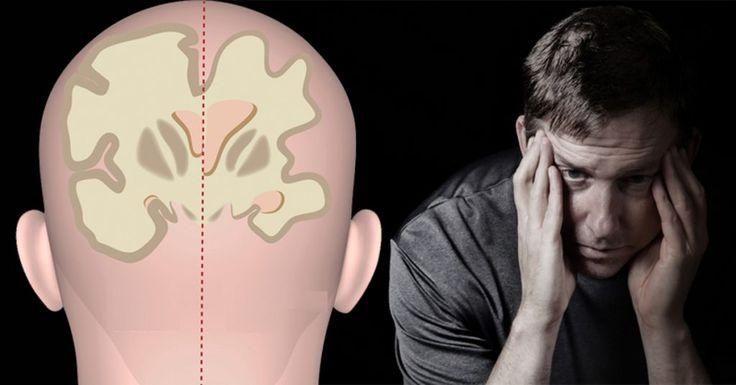Según la OMS la enfermedad de Alzheimer está entre las 10 principales causas de muerte en todo el mundo. Junto con ella está el accidente cerebrovascular, que puede causar demencia, y el suicidio, que a menudo está vinculado a la depresión. Los tratamientos con plantas para estas enfermedades no son muy diferentes. A menudo involucran medicamentos, medicamentos que, por supuesto, vienen con su propia lista de posibles efectos secundarios. Por desgracia, tanto la enfermedad de Alzheimer como…