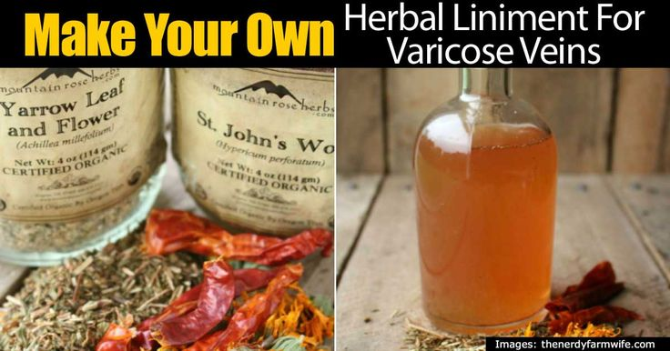 Many people may have pains when it comes to their muscles, but this recipe for varicose veins and muscle pains will help immensely. For the recipe you need: 1 part yarrow 1 part calendula flowers 1 part St. John‰'s wort 1/4 part cayenne or ginger Witch hazel You may Also Like: Herbal Spider Vein Remedies …