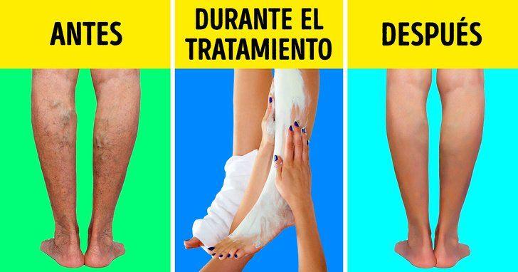 rețetă de la picioarele varicoase)